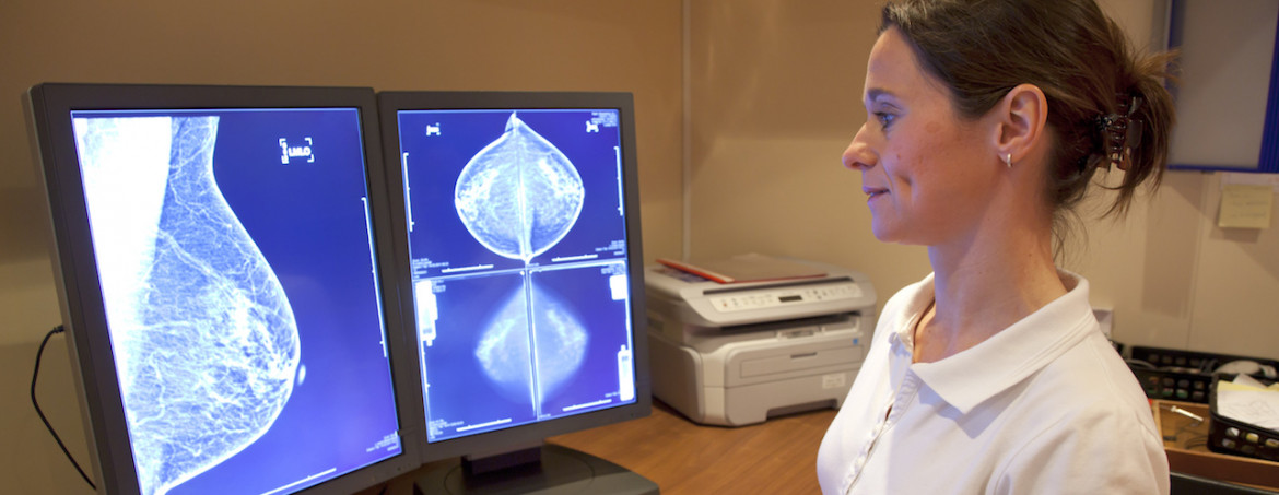 Mammography Service