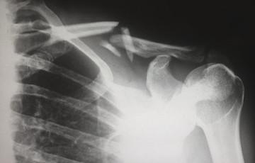 X-Rays (General Radiography) | Island Health